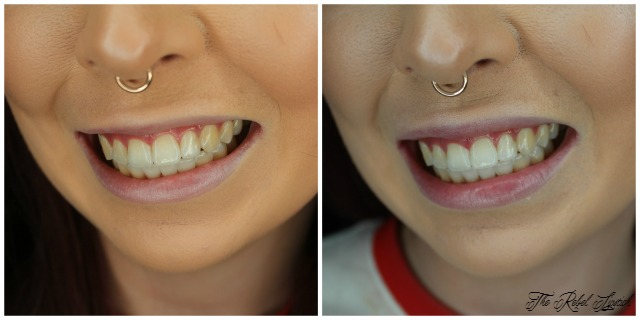 white-glo-bright-nights-dissolving-whitening-films-before-after