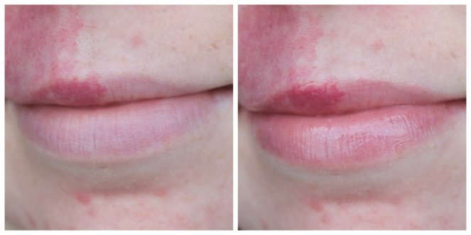 Overnight Lip Mask Before After